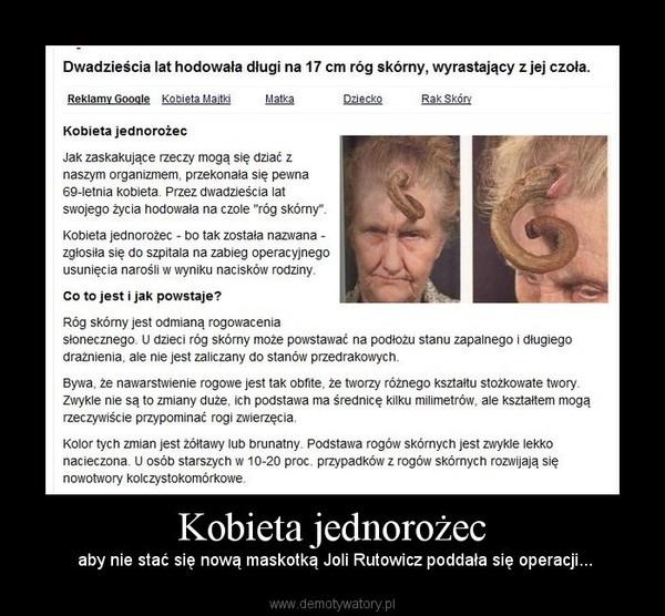 Kobieta jednorożec – aby nie stać się nową maskotką Joli Rutowicz poddała się operacji...