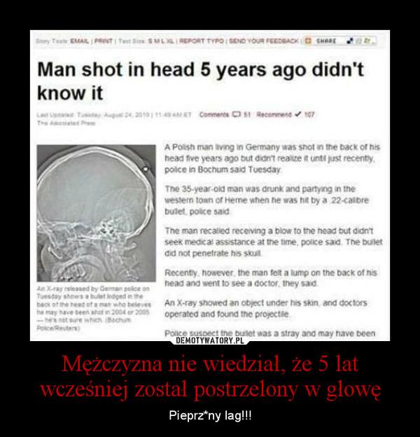 Mężczyzna nie wiedział, że 5 lat wcześniej został postrzelony w głowę – Pieprz*ny lag!!!