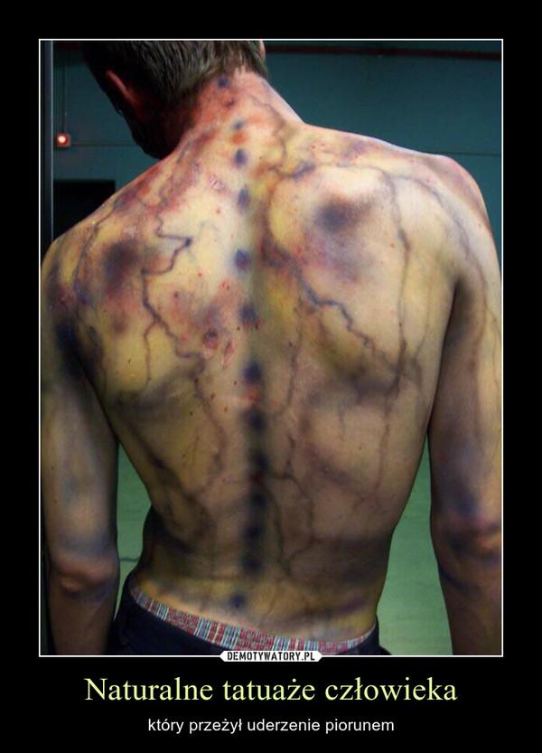 Naturalne tatuaże człowieka – który przeżył uderzenie piorunem