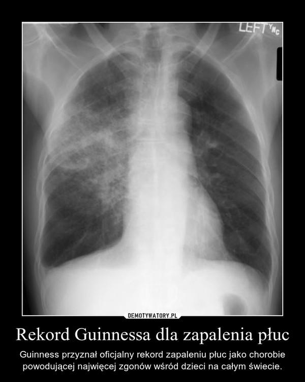 Rekord Guinnessa dla zapalenia płuc – Guinness przyznał oficjalny rekord zapaleniu płuc jako chorobie powodującej najwięcej zgonów wśród dzieci na całym świecie.
