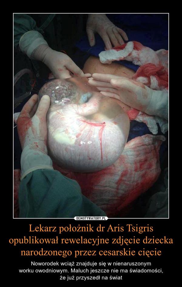 Lekarz położnik dr Aris Tsigris opublikował rewelacyjne zdjęcie dziecka narodzonego przez cesarskie cięcie – Noworodek wciąż znajduje się w nienaruszonymworku owodniowym. Maluch jeszcze nie ma świadomości,że już przyszedł na świat