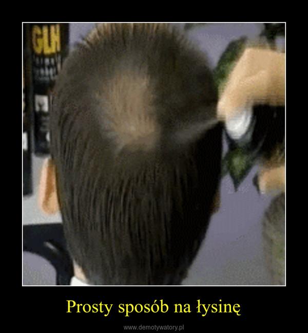 Prosty sposób na łysinę –