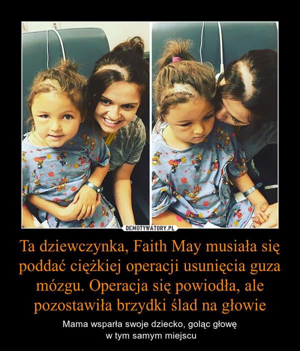 Ta dziewczynka, Faith May musiała się poddać ciężkiej operacji usunięcia guza mózgu. Operacja się powiodła, ale pozostawiła brzydki ślad na głowie – Mama wsparła swoje dziecko, goląc głowę w tym samym miejscu