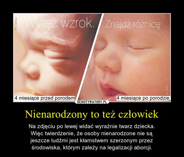 Nienarodzony to też człowiek – Na zdjęciu po lewej widać wyraźnie twarz dziecka.Więc twierdzenie, że osoby nienarodzone nie sąjeszcze ludźmi jest kłamstwem szerzonym przezśrodowiska, którym zależy na legalizacji aborcji.