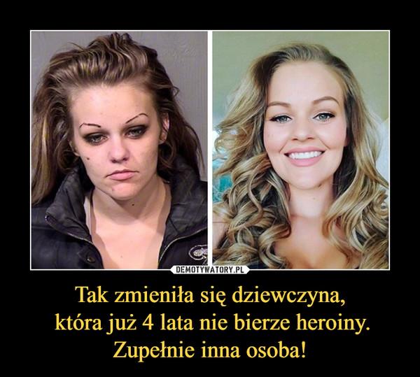 Tak zmieniła się dziewczyna, która już 4 lata nie bierze heroiny. Zupełnie inna osoba! –