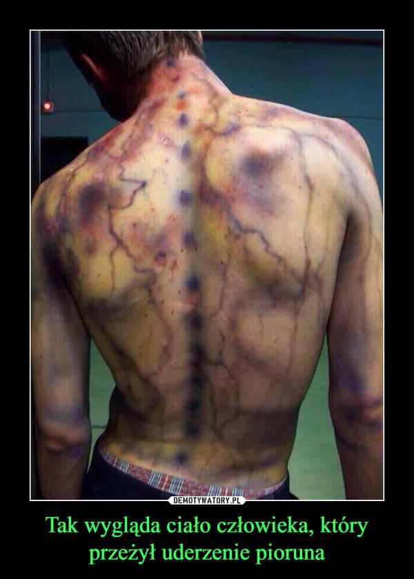 Tak wygląda ciało człowieka, który przeżył uderzenie pioruna –