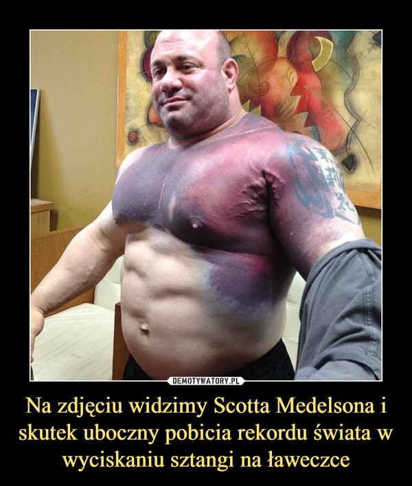 Na zdjęciu widzimy Scotta Medelsona i skutek uboczny pobicia rekordu świata w wyciskaniu sztangi na ławeczce –