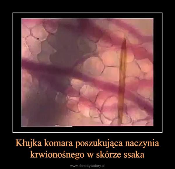 Kłujka komara poszukująca naczynia krwionośnego w skórze ssaka –
