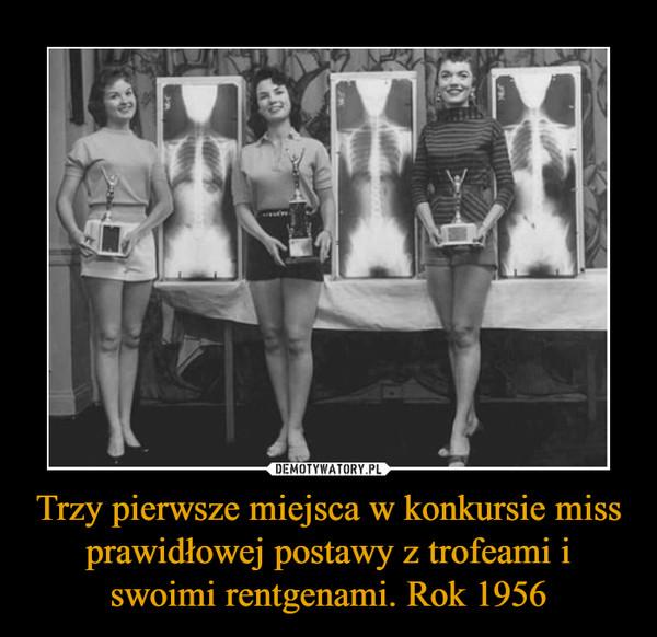 Trzy pierwsze miejsca w konkursie miss prawidłowej postawy z trofeami i swoimi rentgenami. Rok 1956 –