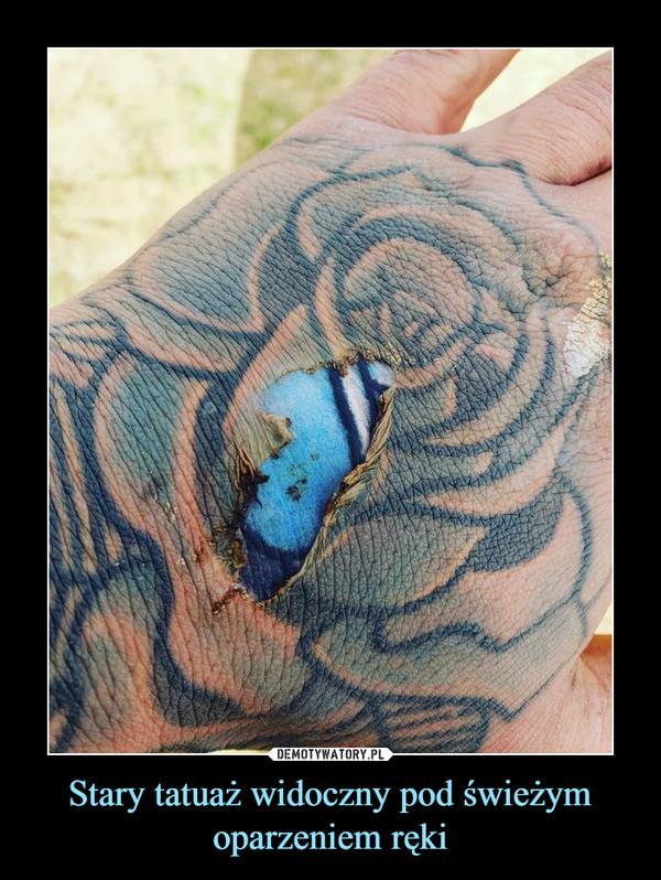Stary Tatuaż Widoczny Pod świeżym Oparzeniem Ręki