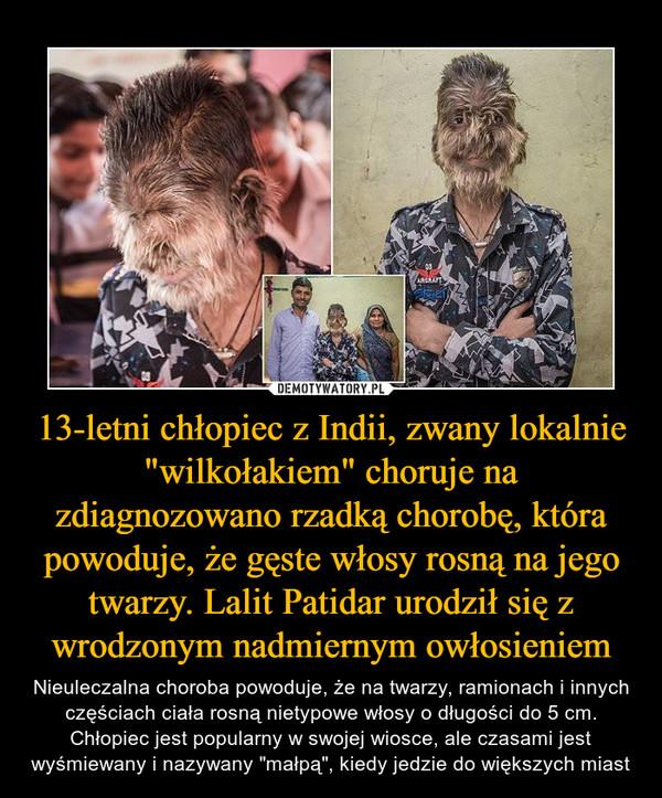 """13-letni chłopiec z Indii, zwany lokalnie """"wilkołakiem"""" choruje na zdiagnozowano rzadką chorobę, która powoduje, że gęste włosy rosną na jego twarzy. Lalit Patidar urodził się z wrodzonym nadmiernym owłosieniem – Nieuleczalna choroba powoduje, że na twarzy, ramionach i innych częściach ciała rosną nietypowe włosy o długości do 5 cm. Chłopiec jest popularny w swojej wiosce, ale czasami jest wyśmiewany i nazywany """"małpą"""", kiedy jedzie do większych miast"""