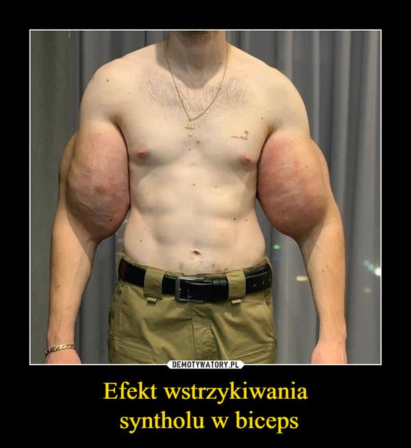 Efekt wstrzykiwania syntholu w biceps –