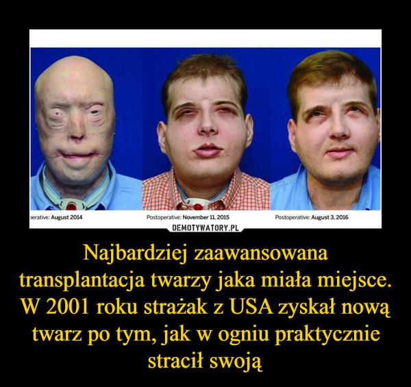 Najbardziej zaawansowana transplantacja twarzy jaka miała miejsce. W 2001 roku strażak z USA zyskał nową twarz po tym, jak w ogniu praktycznie stracił swoją –