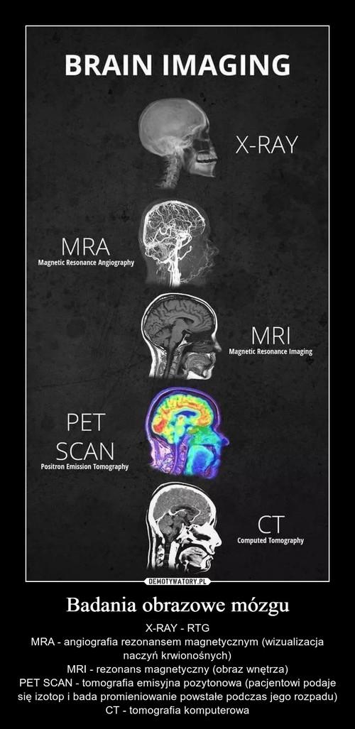 Badania obrazowe mózgu