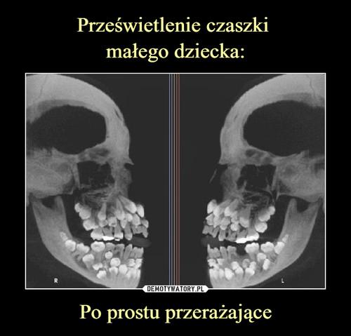 Prześwietlenie czaszki  małego dziecka: Po prostu przerażające