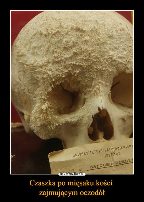 Czaszka po mięsaku kości  zajmującym oczodół