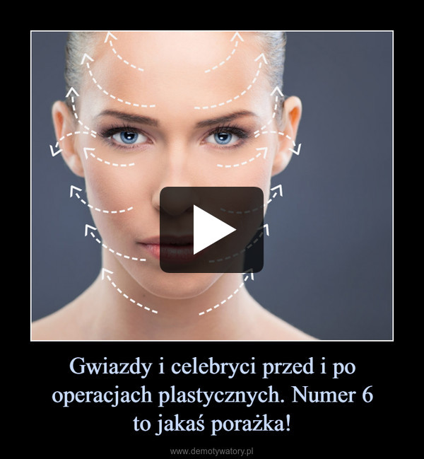 Gwiazdy i celebryci przed i po operacjach plastycznych. Numer 6to jakaś porażka! –